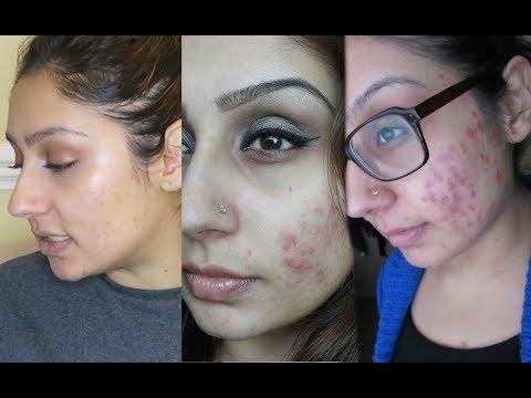 Clear ACNE in 6 weeks naturally | RajiOsahn