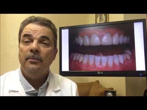 Choosing A Cosmetic Dentist In San Diego
