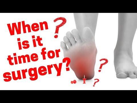 Heel Pain Epidemic Video 10: Surgery