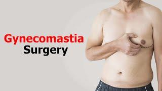 Cure Of Gynecomastia | Gynecomastia Surgery Video | Pune | Delhi | Gurgaon | Bengaluru | Ahmadabad |