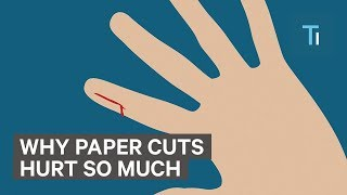 Why paper cuts hurt so much