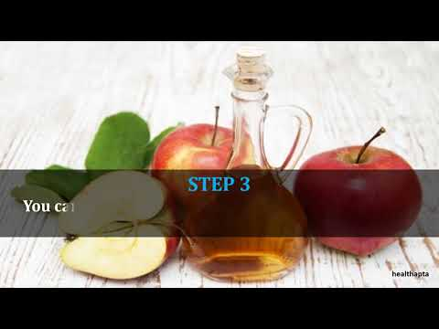 Apple Cider Vinegar for Sebaceous Cyst