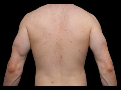 How to Get Rid of Acne on Your Back - Acne On Back Removal
