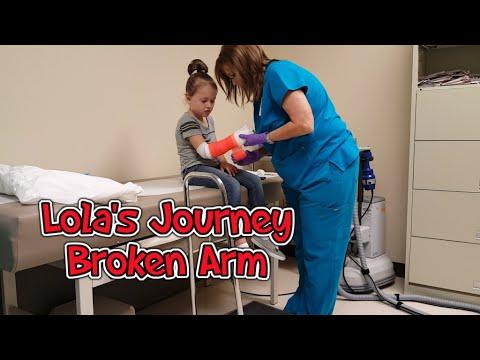 Broken Arm and Getting a Cast | Lola's Gymnastics