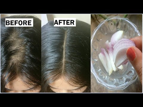 Onion & Coconut oil for Extreme HAIR GROWTH in 30 Days to get long hair, thick hair naturally