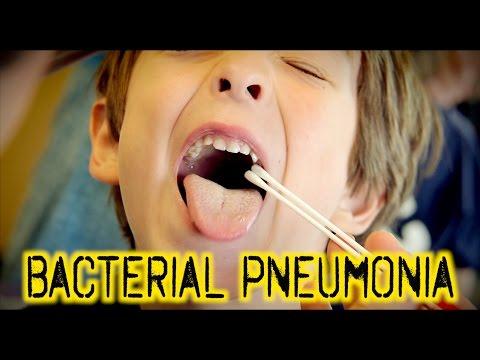 BACTERIAL PNEUMONIA: Diagnosis & Treatment | Dr. Paul