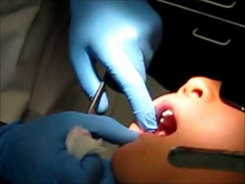 GETTING MY TOOTH PULLED! (7-28-11)DAY 6
