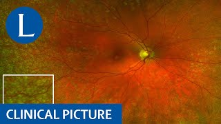 Clinical Picture | Drusen in the retina