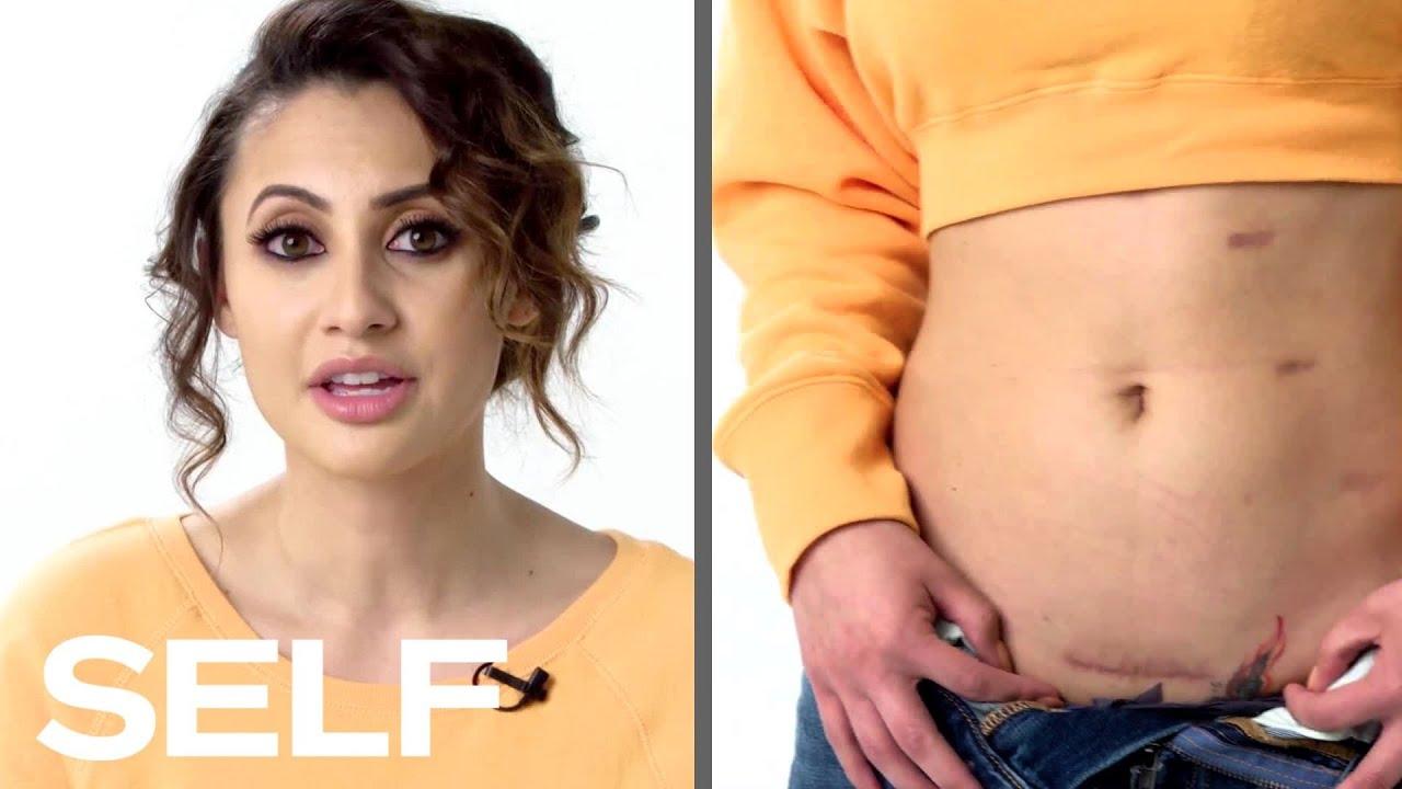 Download Francia Raisa Explains How She Became Selena Gomez's Kidney Donor | Body Stories | SELF MP3 Gratis