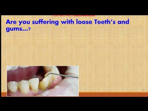 How to fit loose teeth and gums
