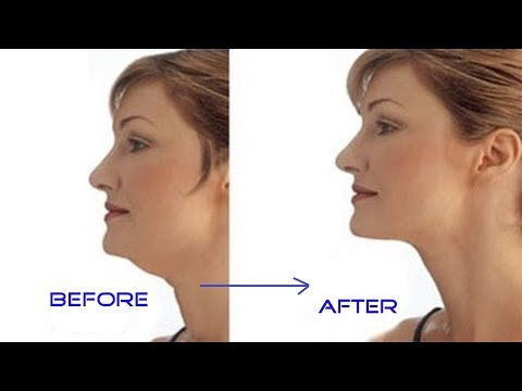 How to Get Rid of Neck Fat   Simple And Quick Get Rid of Neck Fat Fast
