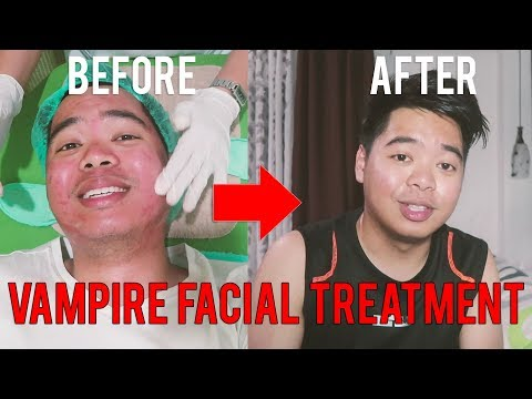 How To Remove Deep Acne Scars? (Vampire Treatment + Result) | Skin Lounge