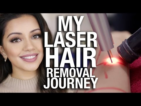 My Laser Hair Removal Journey