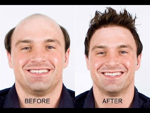 Reverse Hair Loss Fast! Naturally! Stop Baldness! Subliminal Hypnosis Frequencies Treatment!