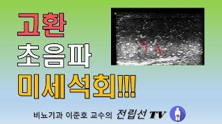 고환 초음파 미세석회