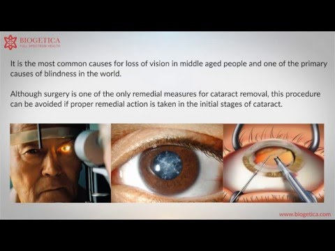 Can Natural Cataract treatments cure Cataract ?