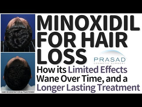 Why the Limited Effects of Minoxidil can Wane Over Time, and More Effective Hair Loss Treatments