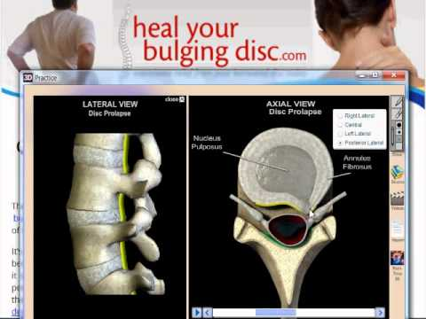 Causes Of A Bulging Disc Or A Herniated Disc - What To Avoid To Prevent Flare Ups