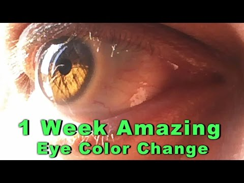 My Eye Color Changing Journey - Amazing 1 Week Result