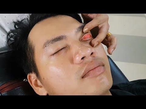 How to clean eyes | Làm sạch mắt & Cắt tóc 3 phân