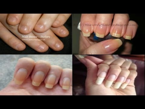 HOW TO GROW YOUR NAILS REALLY FAST AND LONG IN JUST 10 DAYS NATURALLY