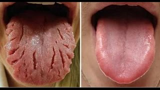 These 9 Changes on Your Tongue Reveal Almost All Your Diseases