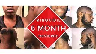 My Beard Journey Minoxidil Week 6 UPDATE | Daikhlo
