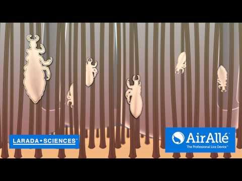 Larada Sciences Revolutionary Lice Killing Technology