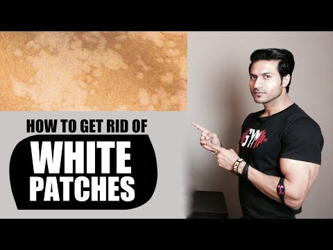 How to Get Rid of WHITE PATCHES (सफेद दाग) on Skin | Remedies by Guru Mann