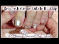 👣 Pedicure Tutorial: Cleaning Extreme Amount of Dead Cuticle Skin on Toenails Dry Cracked Calluses