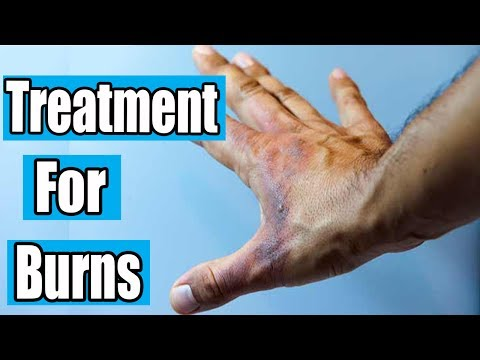 How to Treat a Burn | Treatment for Burns