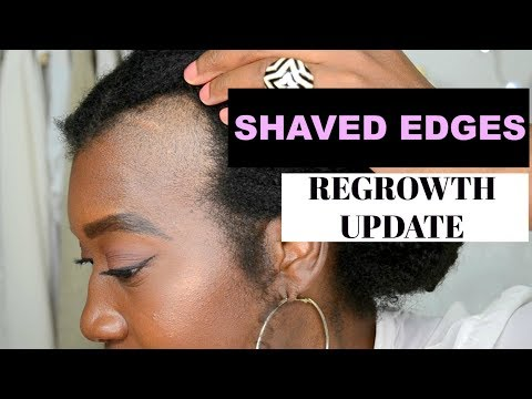 Shaved Off Edges To Grow Them Back Thicker: Week 1 Update | Traction Alopecia | Grow Edges Back #2