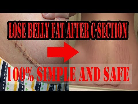 Lose Belly fat After C Section || 100% SAFE EXERCISES to Reduce  C-Section BELLY FAT