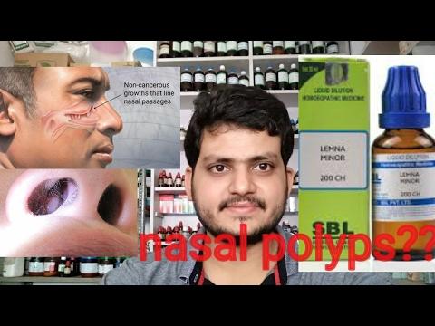 Nasal polyps!Homeopathic medicine for nasal polyps??  explain?
