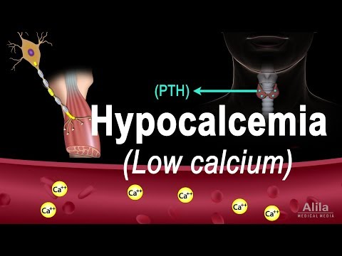 Hypocalcemia (Low Calcium) Pathology, Causes, Symptoms and Treatment, Animation