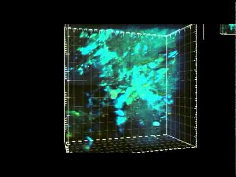 Animation of an EBA wound via two-photon microscopy