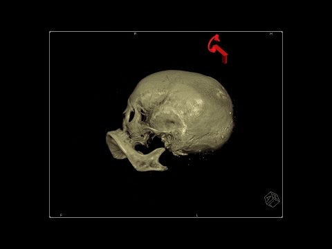 Stanford Radiologists Scan Egyptian Mummy for Clues to Its Origin