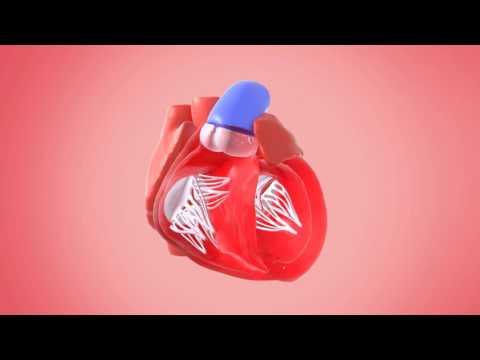 Inside the Heart (Ventricle)