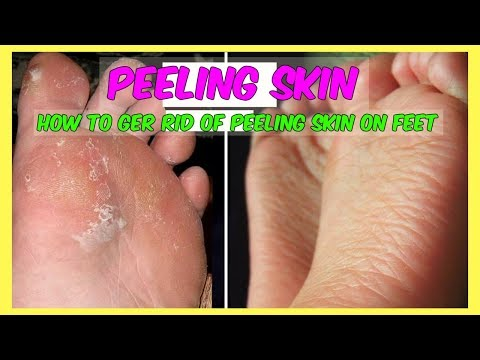 How To Get Rid Of Skin Peeling On Your Feet