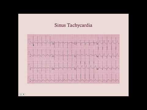 Tachyarrhythmias - CRASH! Medical Review Series