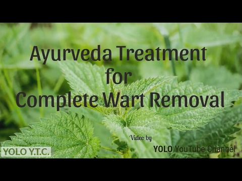 Ayurveda Treatment for complete Wart Removal