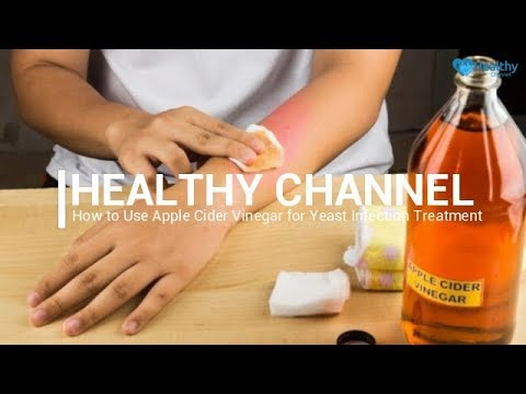 How to Use Apple Cider Vinegar for Yeast Infection Treatment - Healthy Channel