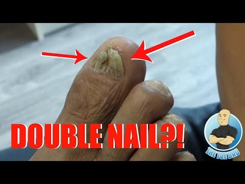 TREATMENT OF A DAMAGED, THICKENED SPLIT TOENAIL