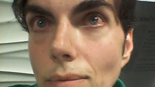 Dangerous Eye Color Surgery Leaves Man Blind