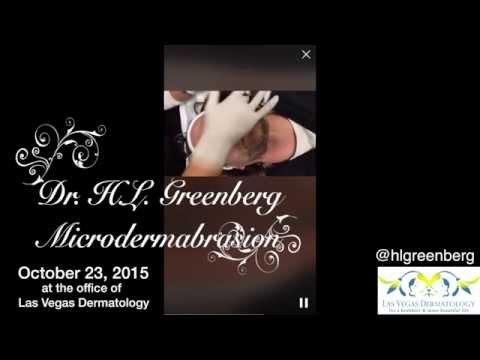 Microdermabrasion at Las Vegas Dermatology with Dr. H.L. Greenberg