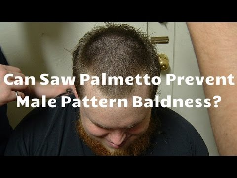 Can Saw Palmetto Prevent Male Pattern Baldness?