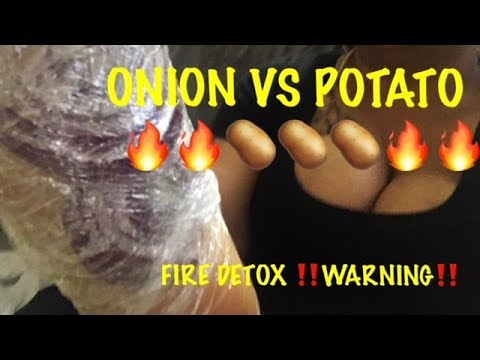 CURE COLD/ FLU OVERNIGHT ⁉️ ONION VS POTATO IN YOUR SOCK DETOX | DOES THIS REALLY WORK⁉️