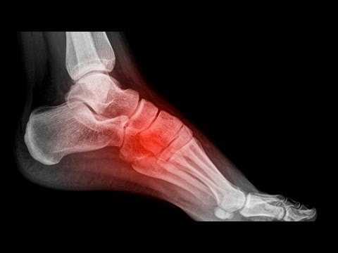 How to Avoid Foot Pain in the Arch | Foot Care