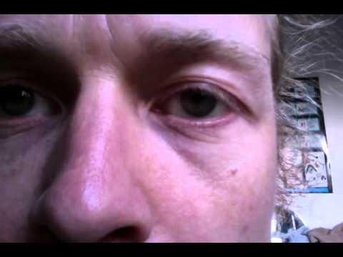 lower left eyelid twitch 20160423