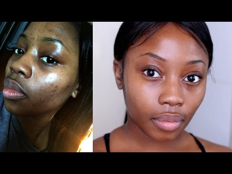 HOW I GOT RID OF MY ACNE|FAST+CHEAP& NATURAL| MORNING SKIN ROUTINE | LIZZIE LOVES